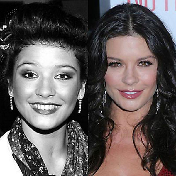 plastic surgery 01 Top 16 Celebrities Before and Ater Plastic Surgery