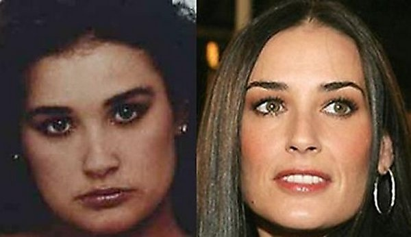 plastic surgery 02 Top 16 Celebrities Before and Ater Plastic Surgery