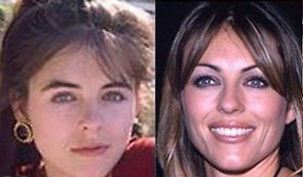 plastic surgery 03 Top 16 Celebrities Before and Ater Plastic Surgery