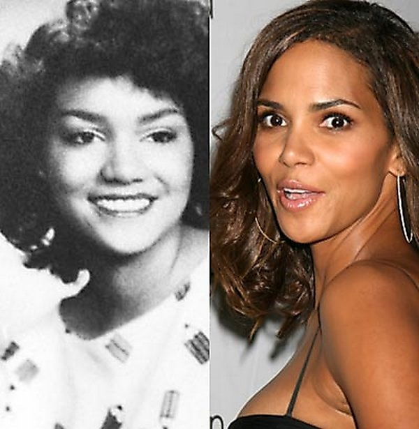 plastic surgery 04 Top 16 Celebrities Before and Ater Plastic Surgery