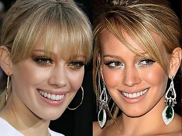 plastic surgery 05 Top 16 Celebrities Before and Ater Plastic Surgery