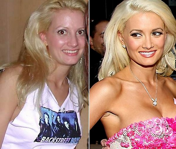 plastic surgery 06 Top 16 Celebrities Before and Ater Plastic Surgery