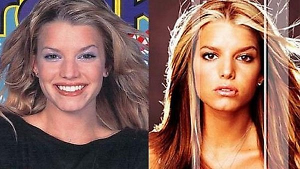 plastic surgery 07 Top 16 Celebrities Before and Ater Plastic Surgery