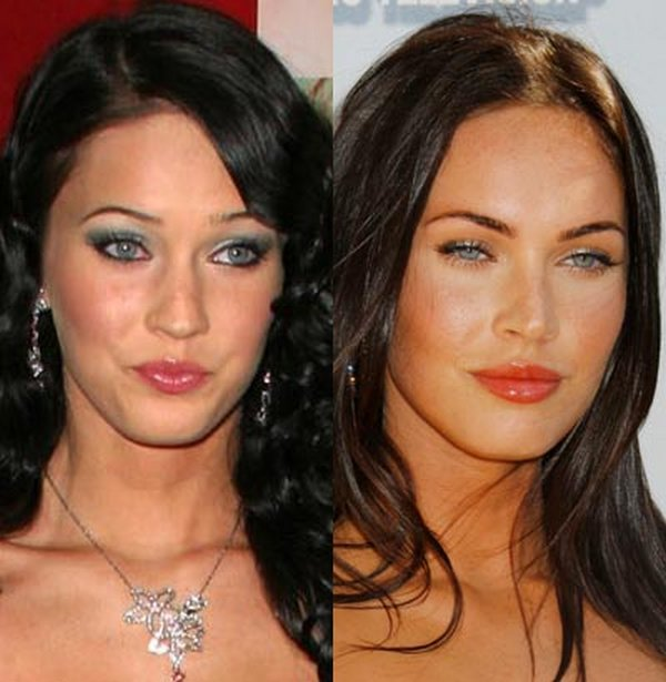 plastic surgery 09 Top 16 Celebrities Before and Ater Plastic Surgery