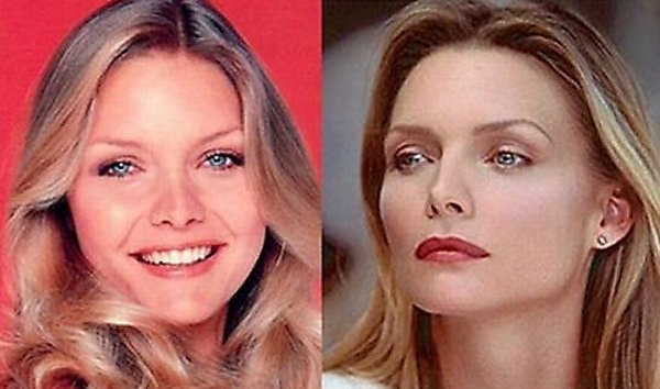 plastic surgery 10 Top 16 Celebrities Before and Ater Plastic Surgery