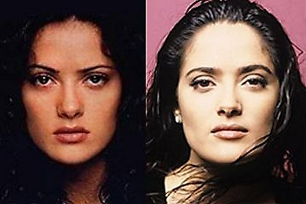 plastic surgery 11 Top 16 Celebrities Before and Ater Plastic Surgery