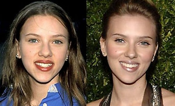 plastic surgery 12 Top 16 Celebrities Before and Ater Plastic Surgery
