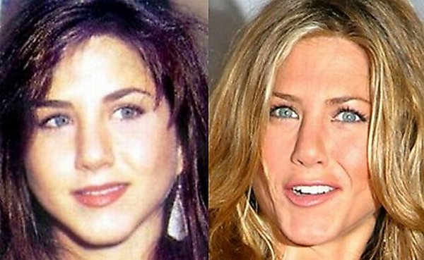 plastic surgery 13 Top 16 Celebrities Before and Ater Plastic Surgery