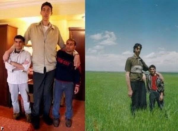 tallest man 07 Meet Sultan Kosen From Turkey   The Worlds Tallest Man 81(2.47 meter)