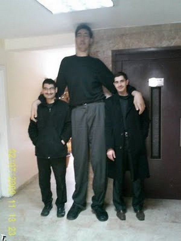 tallest man 08 Meet Sultan Kosen From Turkey   The Worlds Tallest Man 81(2.47 meter)