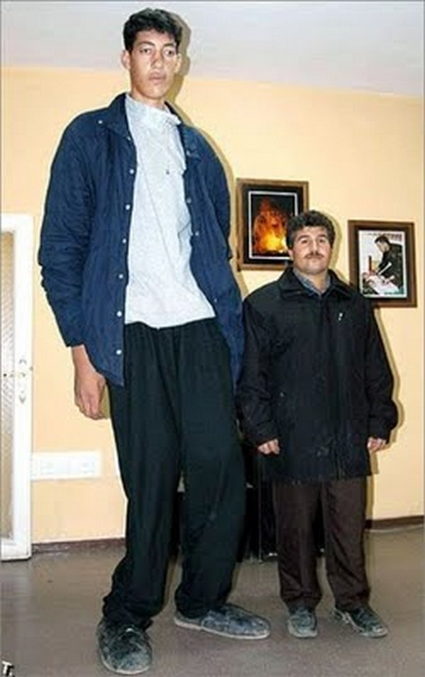 tallest man 09 Meet Sultan Kosen From Turkey   The Worlds Tallest Man 81(2.47 meter)