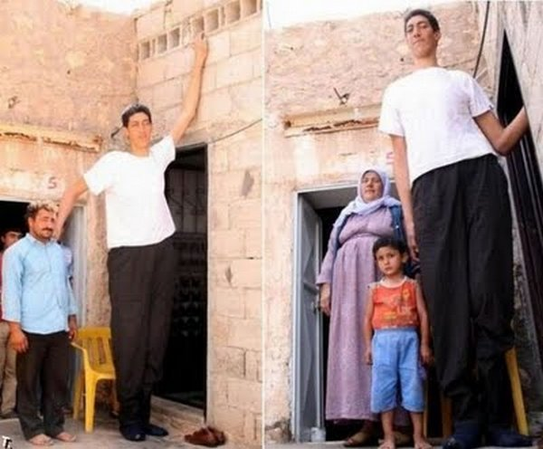 tallest man 11 Meet Sultan Kosen From Turkey   The Worlds Tallest Man 81(2.47 meter)