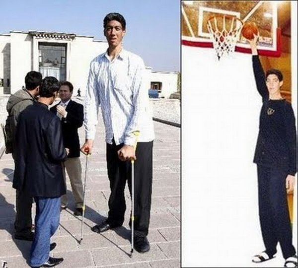 tallest man 12 Meet Sultan Kosen From Turkey   The Worlds Tallest Man 81(2.47 meter)