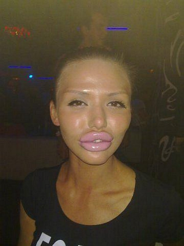 freakish girls 11 Freakish Girls Blessed With Plastic Surgery   Scary!