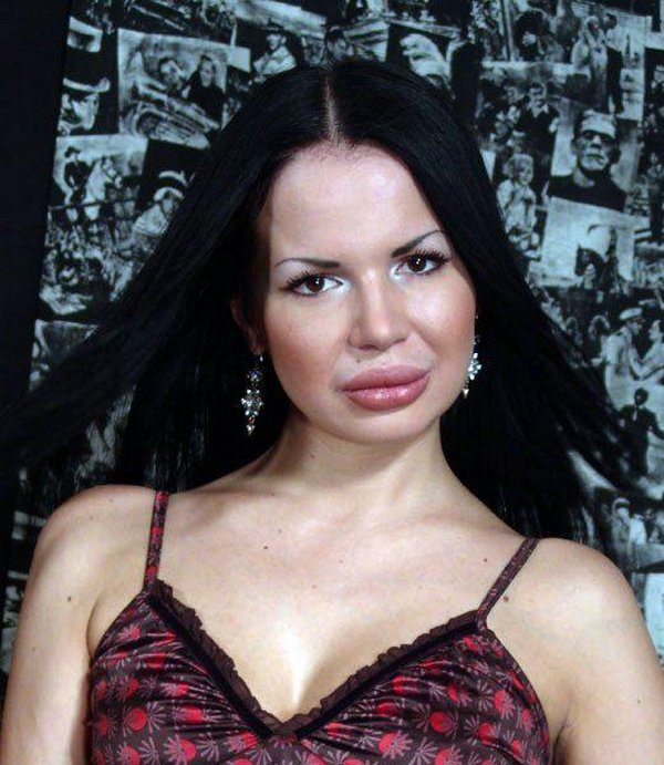 freakish girls 17 Freakish Girls Blessed With Plastic Surgery   Scary!
