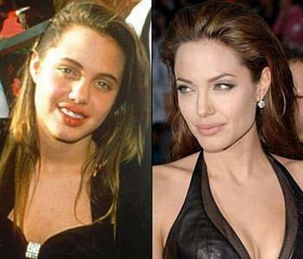 celebrities before and now 02 20 Celebrities Before And After Fame