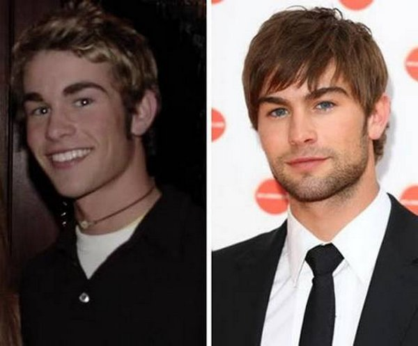 celebrities before and now 06 20 Celebrities Before And After Fame